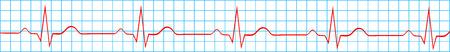 Normal Heart rythm Sur l'enregistrement électrocardiogramme Banque d'images - 23239902