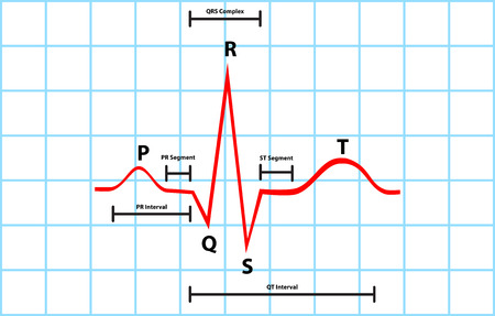 Normal Atrial And Ventricular Depolarization With Electrocardiogram Description Vector