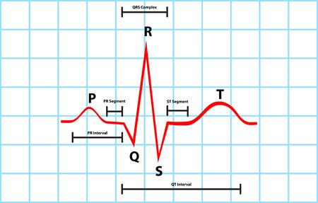 Normal Atrial And Ventricular Depolarization With Electrocardiogram Description Illustration