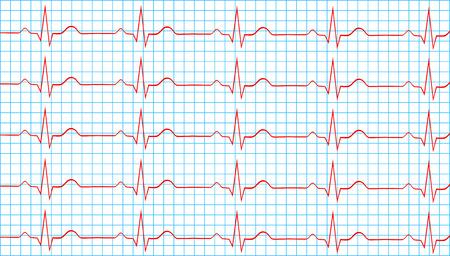 Heart Normal Sinus Rhythm On Electrocardiogram Record Vector Illustration