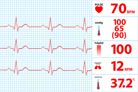 heart ecg trace: Modern Electrocardiogram Monitor Display Illustration