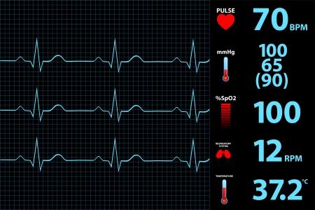 signos vitales: Electrocardiograma moderno de pantalla del monitor