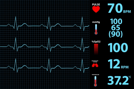 taking pulse: Modern Electrocardiogram Monitor Display Illustration