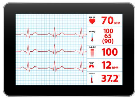 Moderne EKG-Monitor Device Display Vektorgrafik