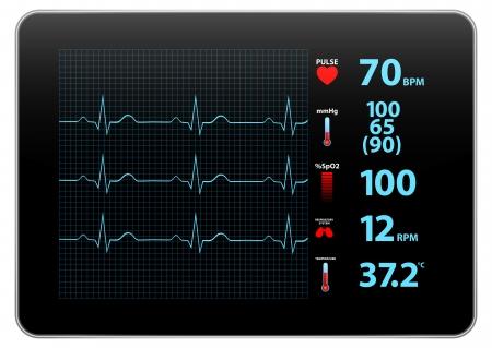 モダンな心電図モニター デバイスの表示