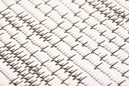 fibrillation: Extrasystoles And Atrial Fibrillation On Electrocardiogram Record Paper Stock Photo