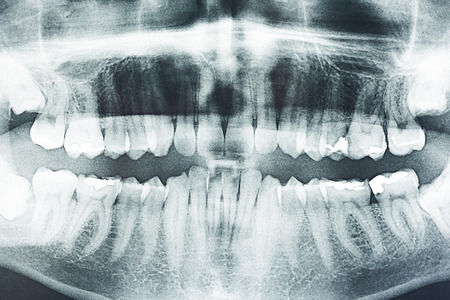 Panoramic Dental X-Ray Of Human Teeth Stock Photo