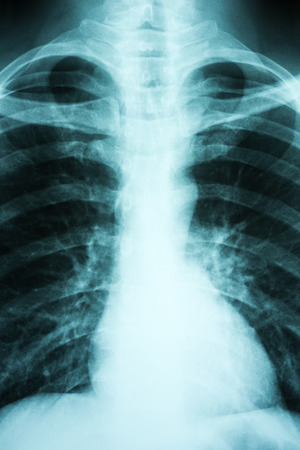 Pulmonary X-Ray Of Patient Lungs photo