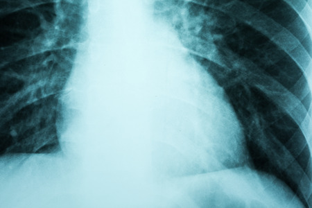 Cardiology X-Ray Of Patient Heart photo