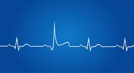Blueprint Of Heart Attack à l'électrocardiogramme Banque d'images - 33446038