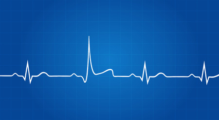 Blueprint Of Heart Attack On Elektrokardiogramm Standard-Bild - 33446038