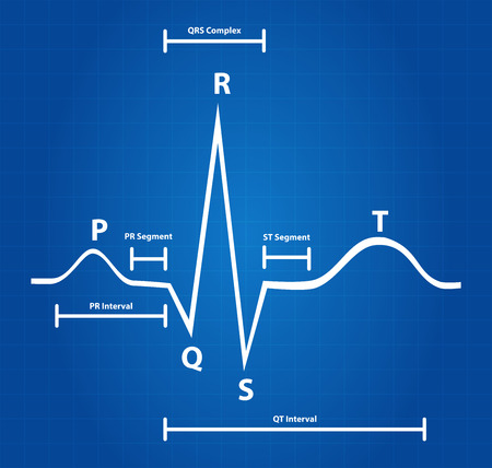 heart ekg trace: Blueprint Of Normal Electrocardiogram Graphic
