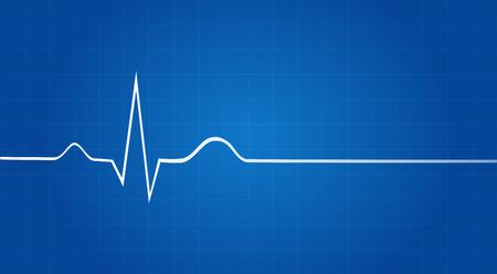 Blauwdruk Van elektrocardiogram Last Life Sign