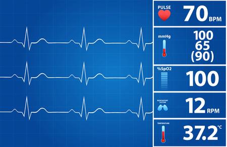 Blueprint Of Modern Electrocardiogram Monitor