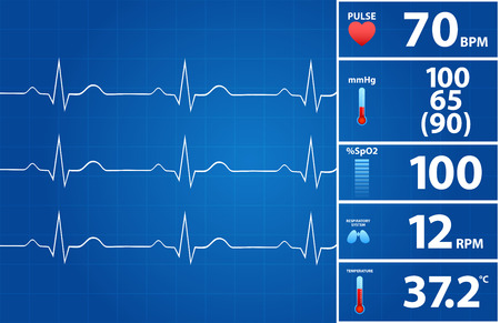 Blueprint Of Modern Electrocardiogram Monitor