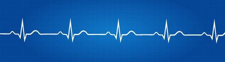 Blueprint Of Normal Electrocardiogram Graphic