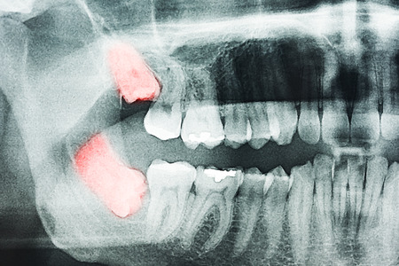 tooth pain: Growing Wisdom Teeth Pain On X-Ray