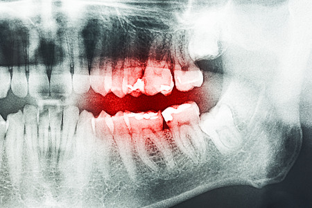 decayed: Decayed Tooth Pain On X-Ray