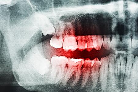 dent douleur: Pourri douleur de dent sur X-Ray