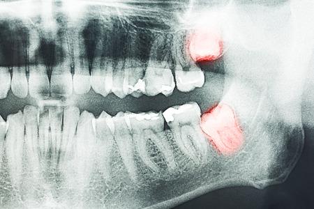 Groeiende wijsheid Tanden Pijn Op X-Ray