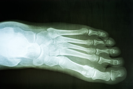 Human Foot X-Ray On Black Background photo