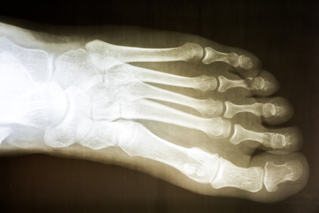 Human Foot X-Ray On Black Background