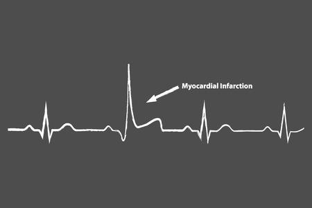 Heart Attack On Blackboard Electrocardiogram