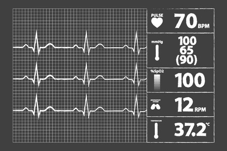 blood pressure monitor: Modern Electrocardiogram Monitor On Blackboard
