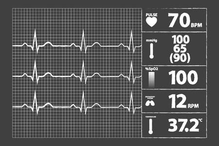 elettrocardiogramma: Moderna Elettrocardiogramma Monitor Sulla Lavagna