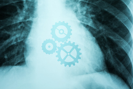 cog wheels: X-Ray Photo Of Human Showing Working Heart With Cog Wheels