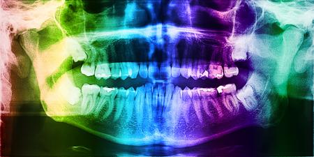 Radiografía dental Foto Del Cráneo humano con los dientes Foto de archivo