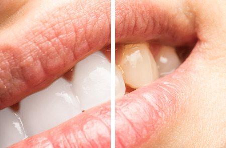 bleaching: Woman Teeth Before And After Whitening Procedure At Dentist Clinic