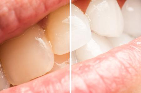 Femme dents avant et après procédure de blanchiment à la clinique de dentiste