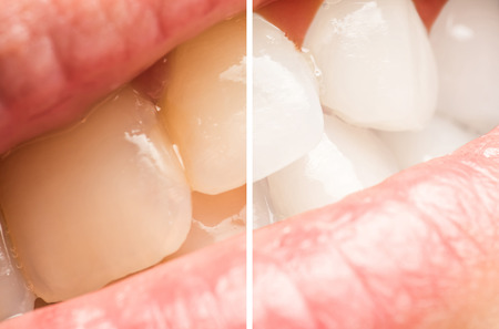 teeth cleaning: Woman Teeth Before And After Whitening Procedure At Dentist Clinic