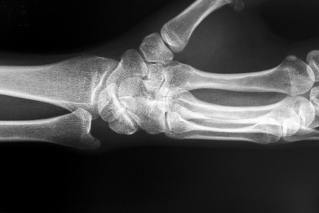x rays negative: X-Ray Of Carpal And Metacarpal Bones In The Human Hand