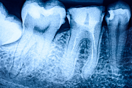 Tooth Decay On Teeth X-Ray