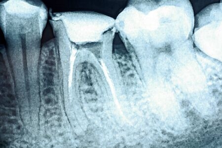 root canal: Obturation of Root Canal Systems On Teeth X-Ray