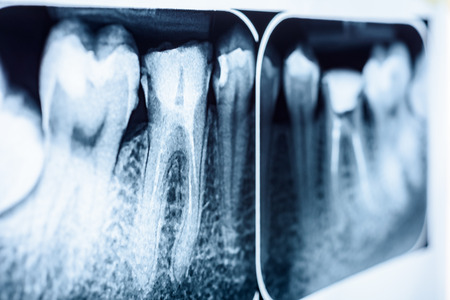tooth root: Obturation of Root Canal Systems On Teeth X-Ray