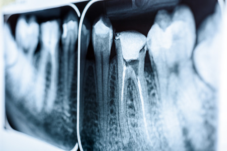 canal: Obturation of Root Canal Systems On Teeth X-Ray