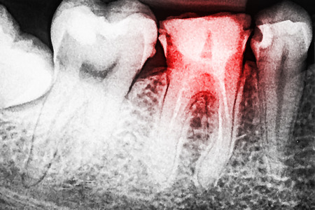 healthy person: Pain Of Tooth Decay On Teeth X-Ray Stock Photo