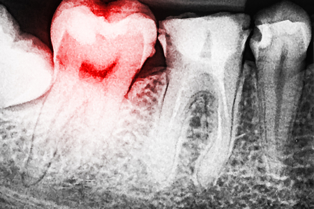 tooth pain: Pain Of Tooth Decay On Teeth X-Ray Stock Photo