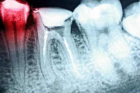 skeleton x ray: Pain Of Tooth Decay On Teeth X-Ray Stock Photo