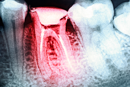 Pain Of Tooth Decay On Teeth X-Ray Archivio Fotografico