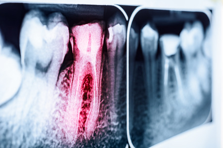 mouth cavity: Pain Of Tooth Decay On Teeth X-Ray Stock Photo