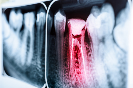 mouth: Pain Of Tooth Decay On Teeth X-Ray Foto de archivo