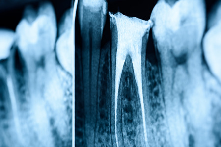 root canal: Full Obturation of Root Canal Systems On Teeth X-Ray Stock Photo