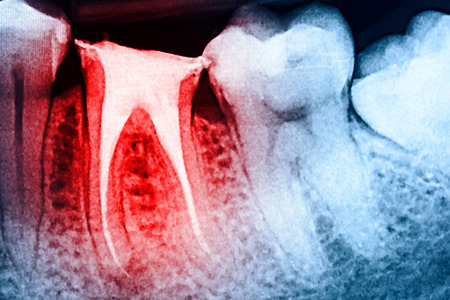 Full Obturation of Root Canal Systems On Teeth X-Ray Stockfoto