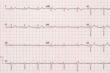 electrocardiograma: El 12 de extras�stoles el papel de registro del electrocardiograma de plomo