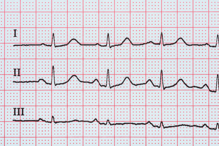 interval: Sinus Heart Rhythm On Electrocardiogram Record Paper Showing Normal P Wave, PR and QT Interval and QRS Complex
