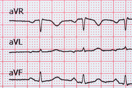 electrocardiograph: Sinus Heart Rhythm On Electrocardiogram Record Paper Showing Normal P Wave, PR and QT Interval and QRS Complex